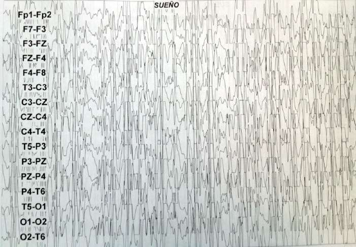 FIG 1. Electroencefalograma con paroxismos de punta y polipunta onda lenta generalizados.