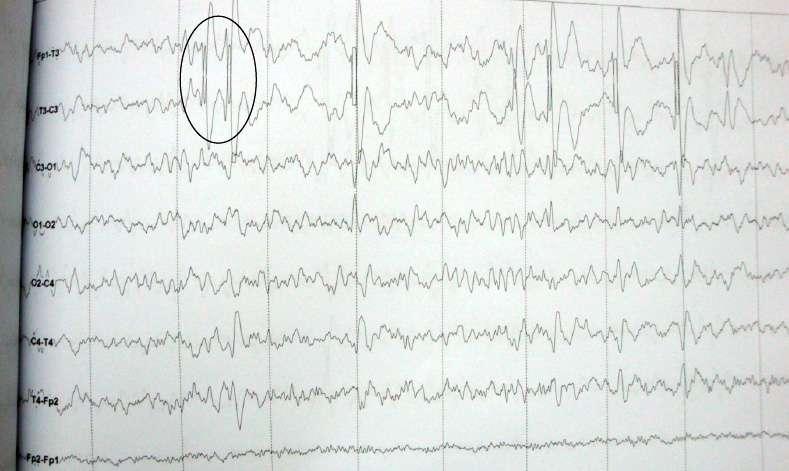 FIG 3. Foco de punta en región temporal izquierda
