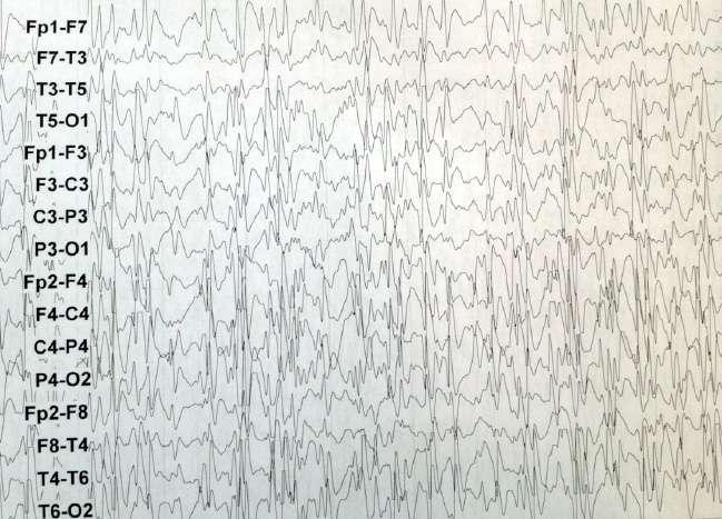 FIG 4. Paroxismos generalizados de punta onda lenta